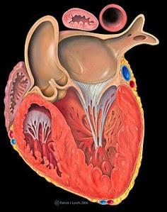 Infarctus aigu du myocarde avec sus-décalage du segment ST : 48 premières heures