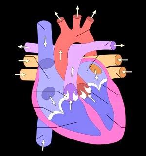 Insuffisance ventriculaire droite