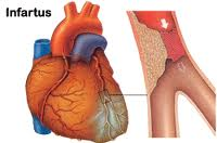 Infarctus aigu du myocarde: questions et réponses